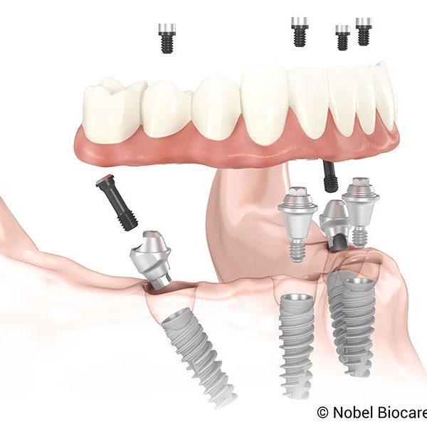 All-on-4_NobelActive-protesis-dental-fija-sobre-implantes-1