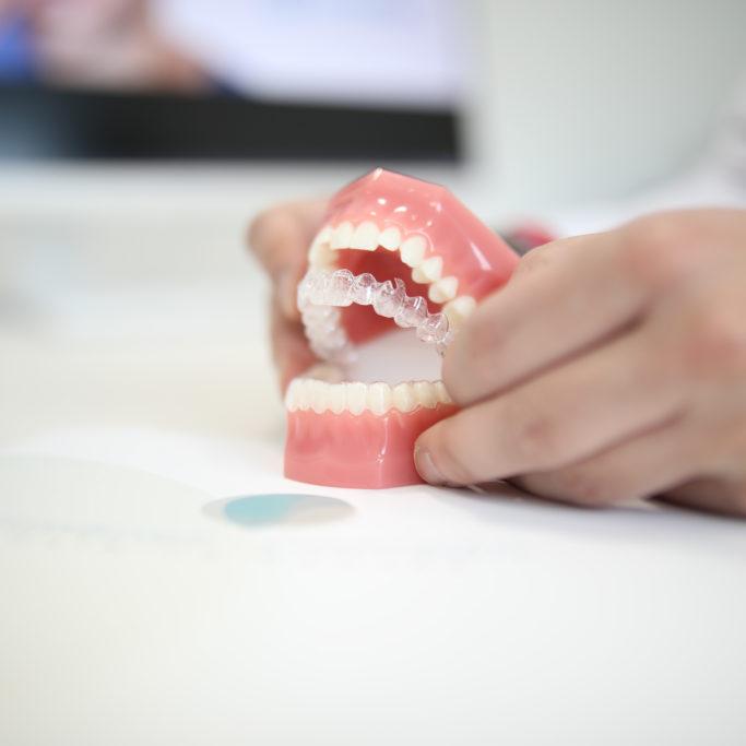 invisalign sevilla, dentistas sevilla, clinica dental sevilla, clinica dental jimenez camean