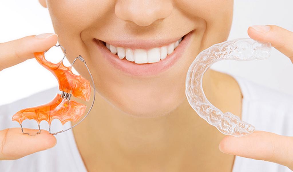 retenedores-en-la-ortodoncia