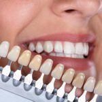 cambios-de-coloracion-en-los-dientes